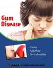 House My Ebook Publishing - Gum Disease [eKönyv: epub,  mobi]