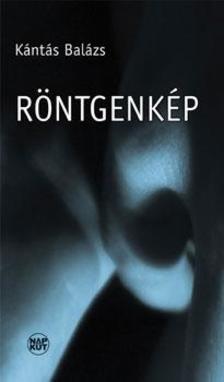 Kántás Balázs - Röntgenkép